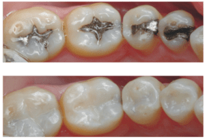 Replace lead filling with composite fillings