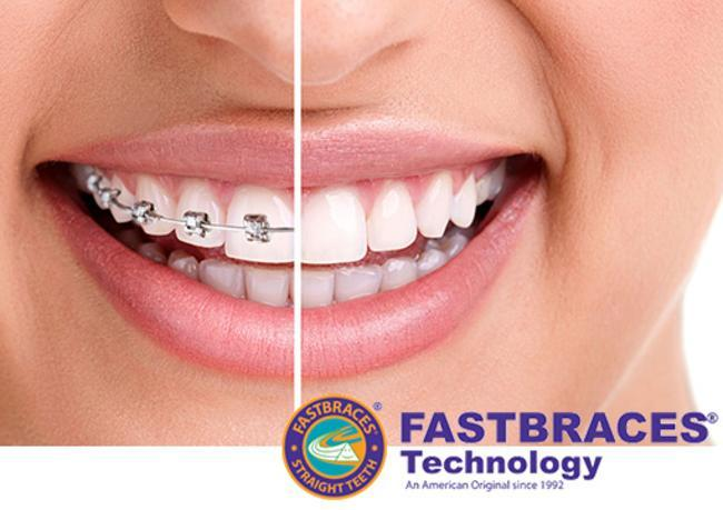 Fast Braces before and after