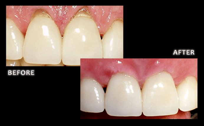 Before and after pinhole gum rejuvenation