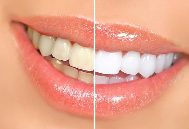 Before and after professional teeth whitening