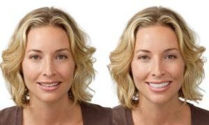 Woman before and after snap-on smile