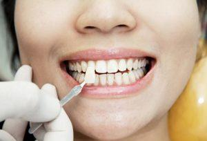Woman receiving veneers